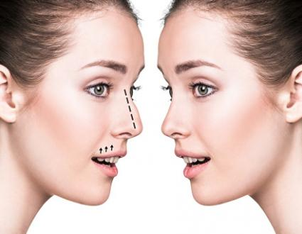 Incredible ramifications for Aesthetic Plastic Surgery